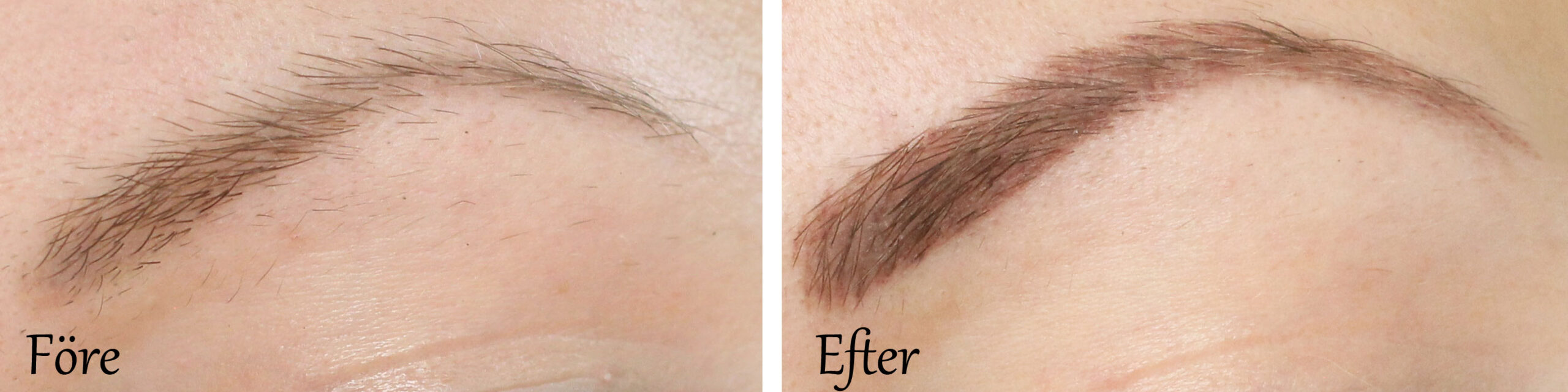 before-after-cosmetic-tattoo-eyebrows