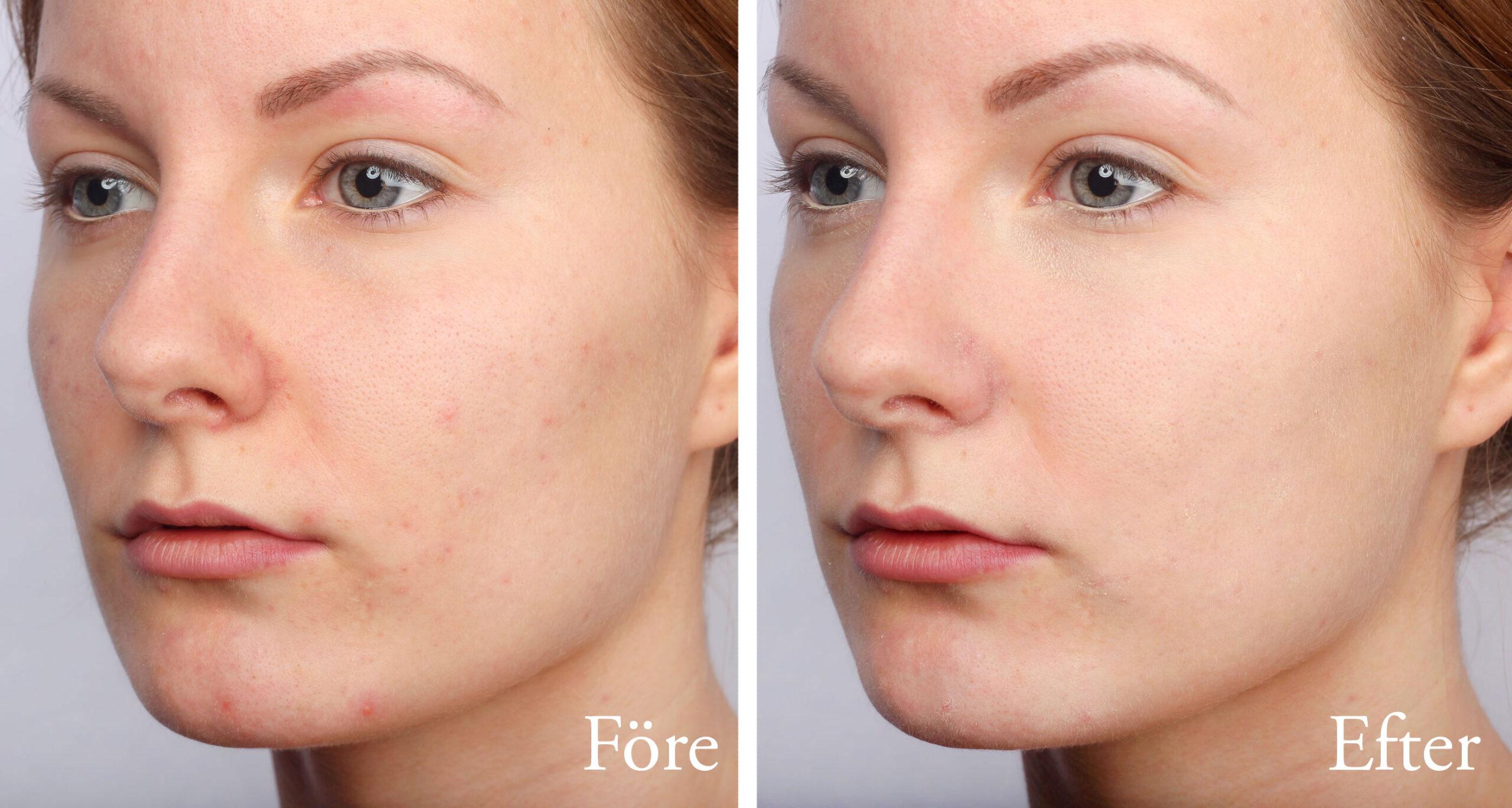 jojobaolja acne