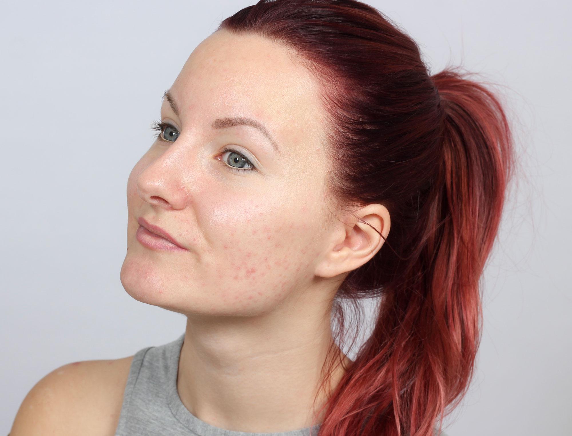 hårstrån på hakan kvinna