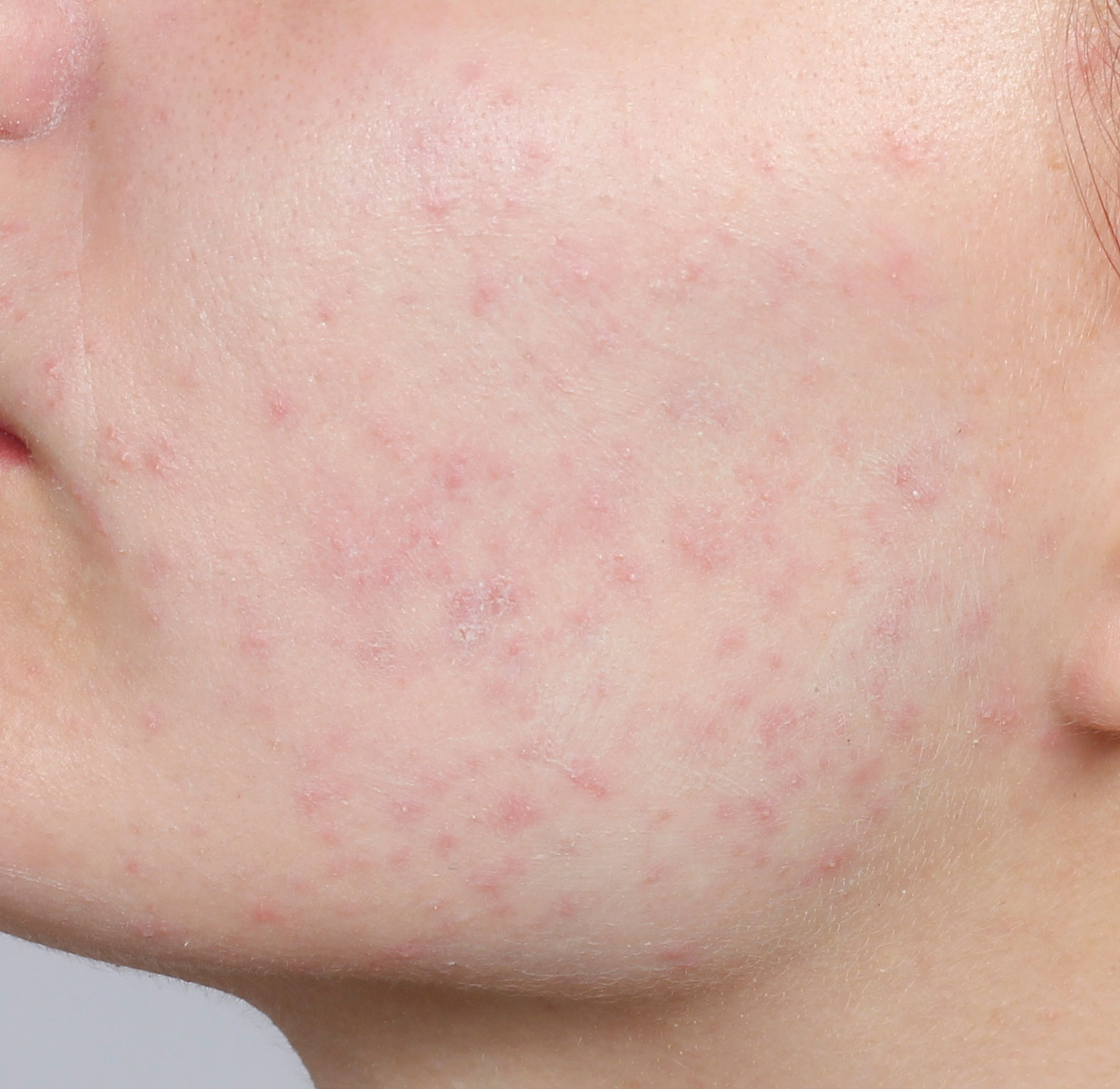 cover pimples with green face primer