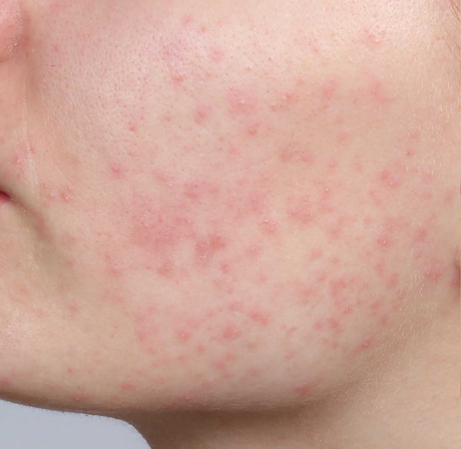acne på kinden