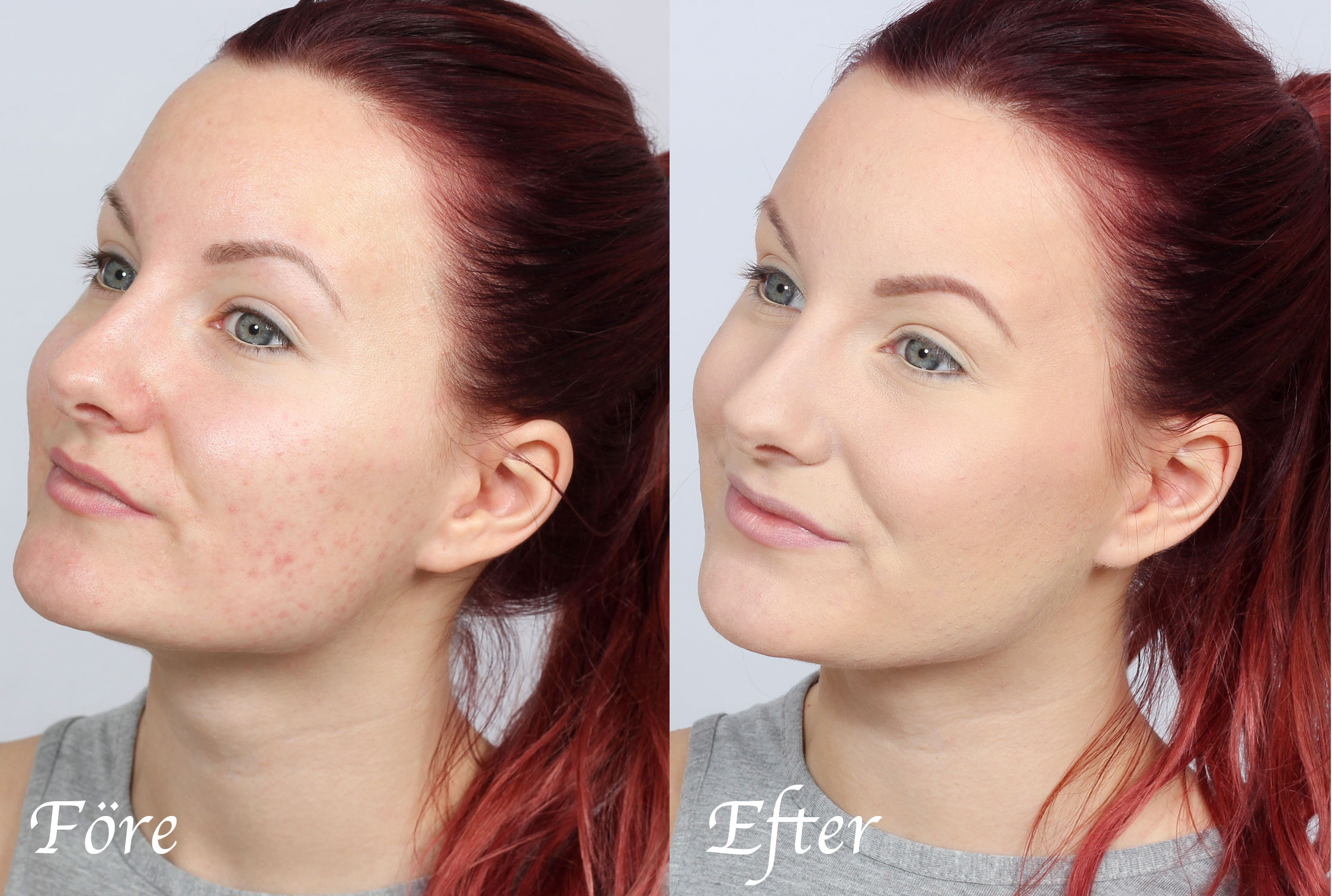 Cover pimples in the best way before and after