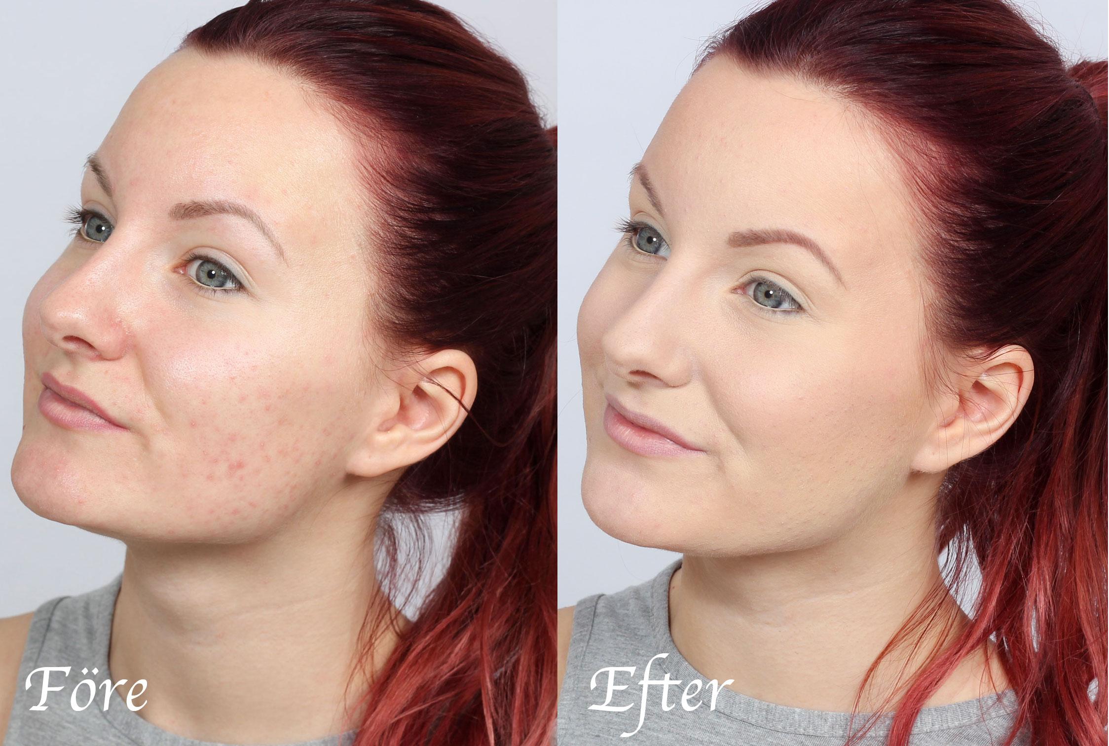 foundation för acne