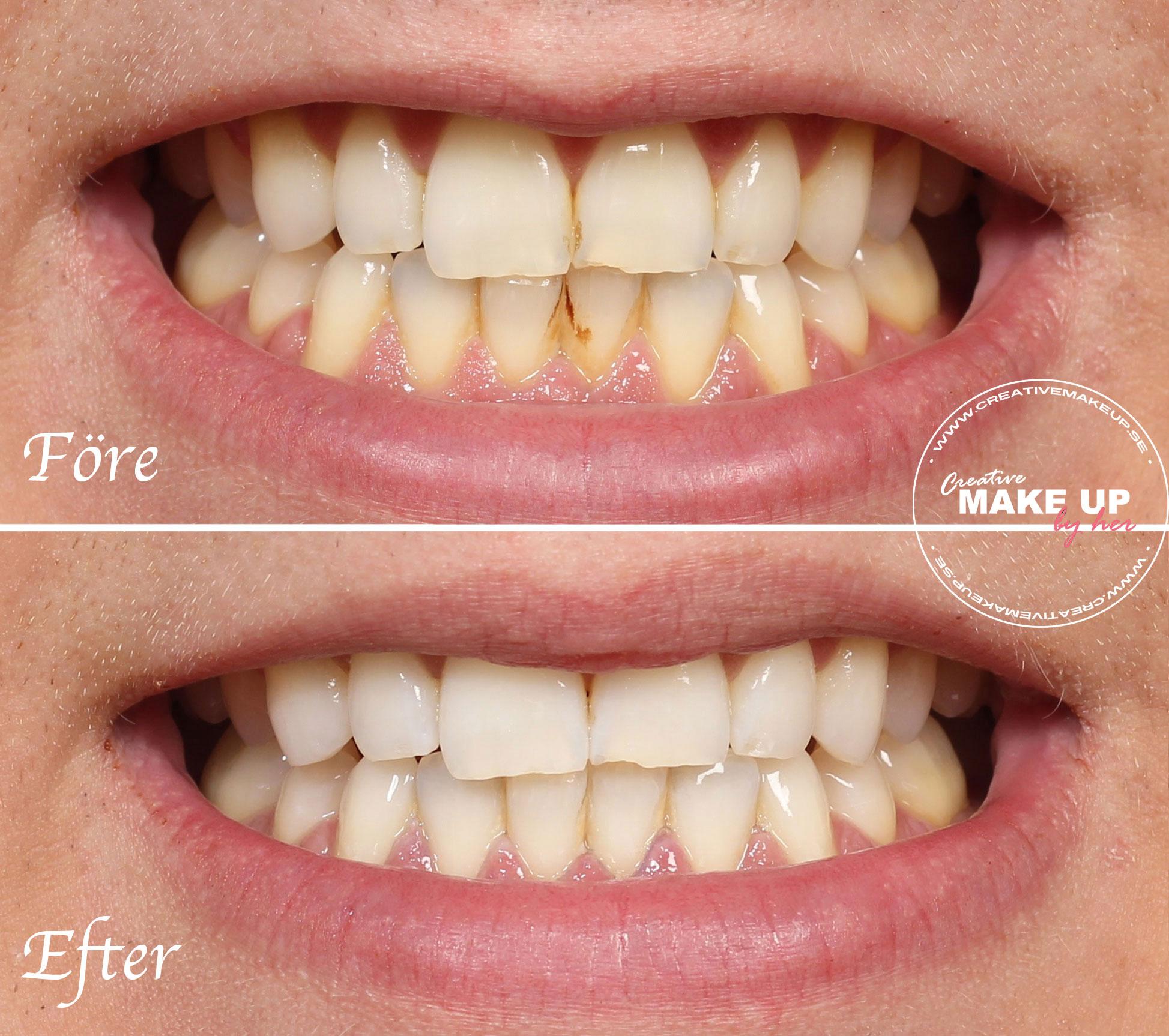 tandkräm som bleker