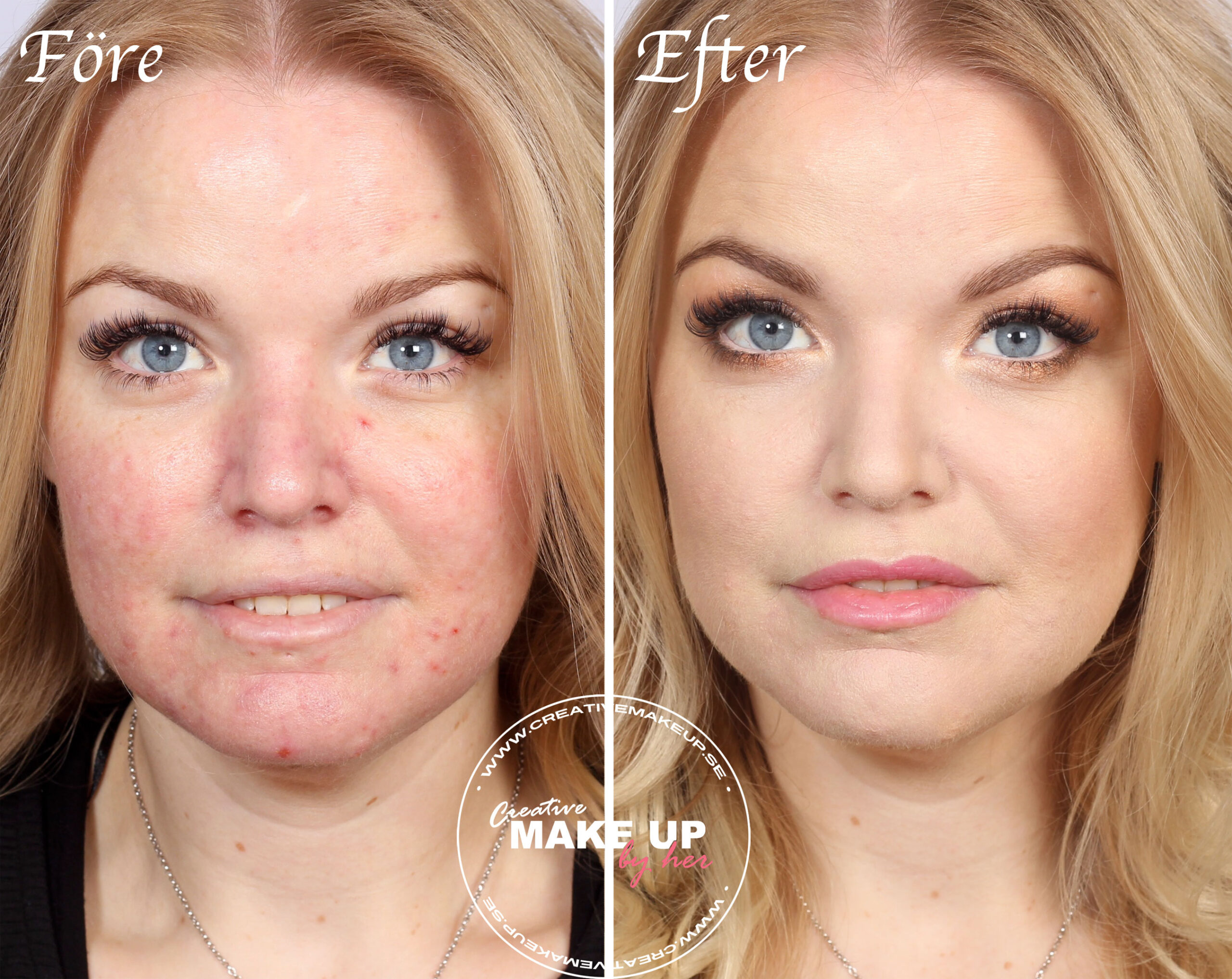 rosacea makeup before after