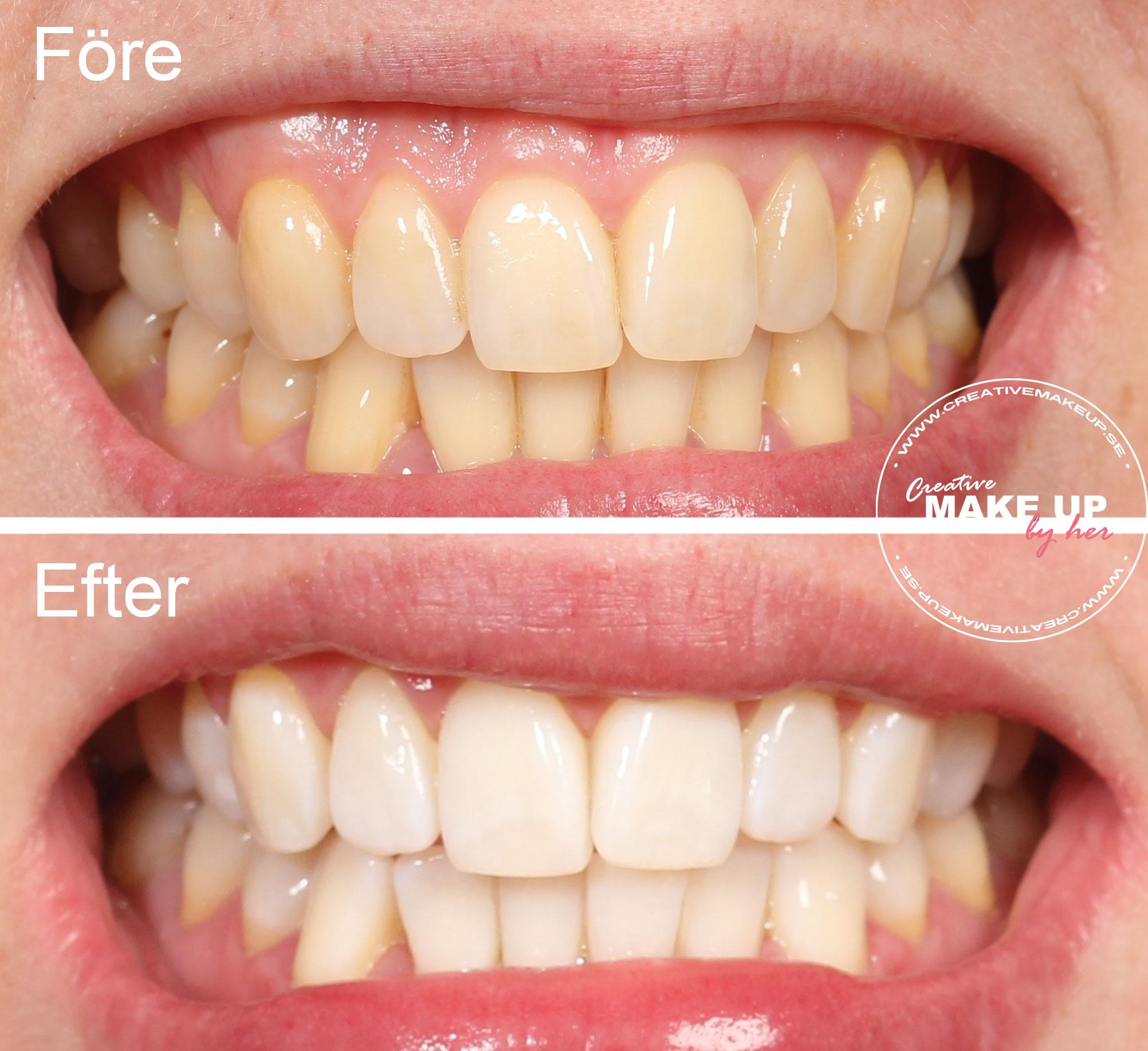 brilliant smile tandkräm före efter