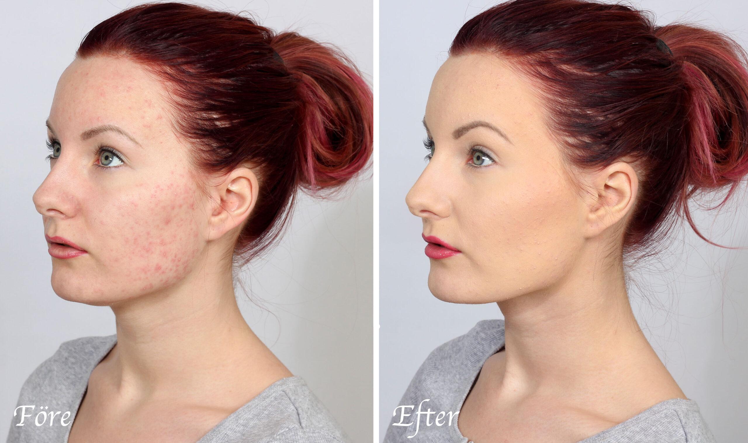makeup acne