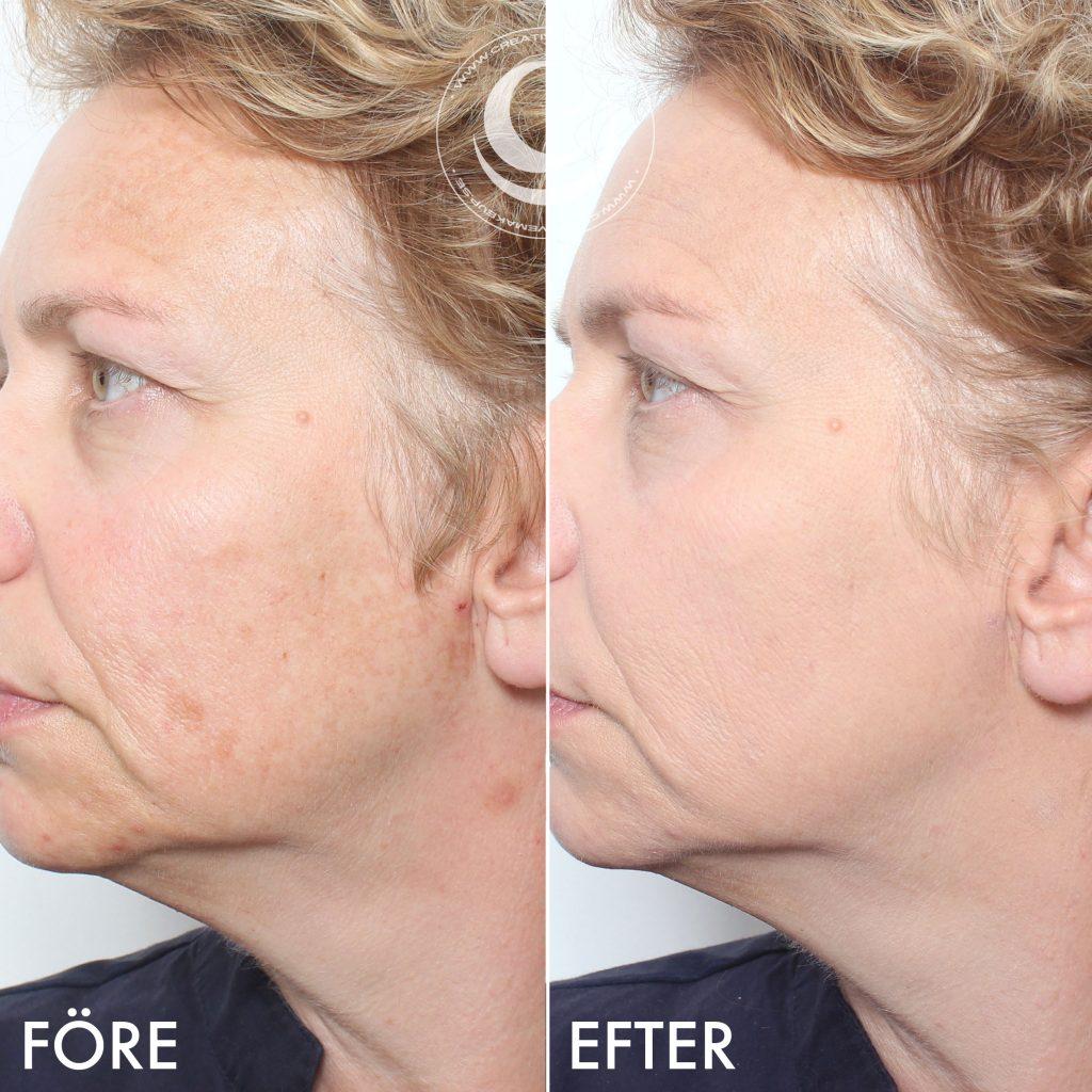 Därför har jag sminkat hennes ansiktshalvor på två olika sätt och med olika  produkter. Jag kommer visa allt stegvis längre ner i inlägget men här är  före ... 5a17d88087474