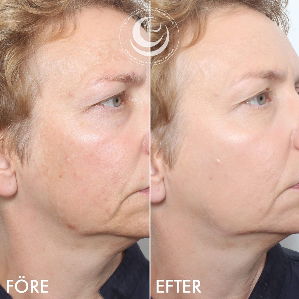 pigmentering i ansiktet