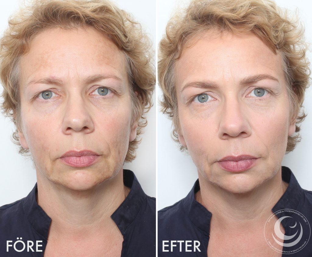 Make up pigment spots before and after