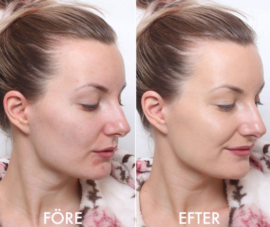 pixi beauty balm före och efter