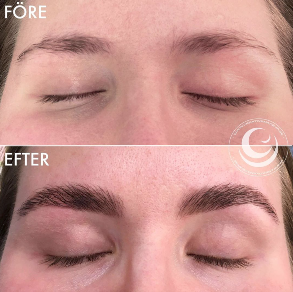 before and after brow lift