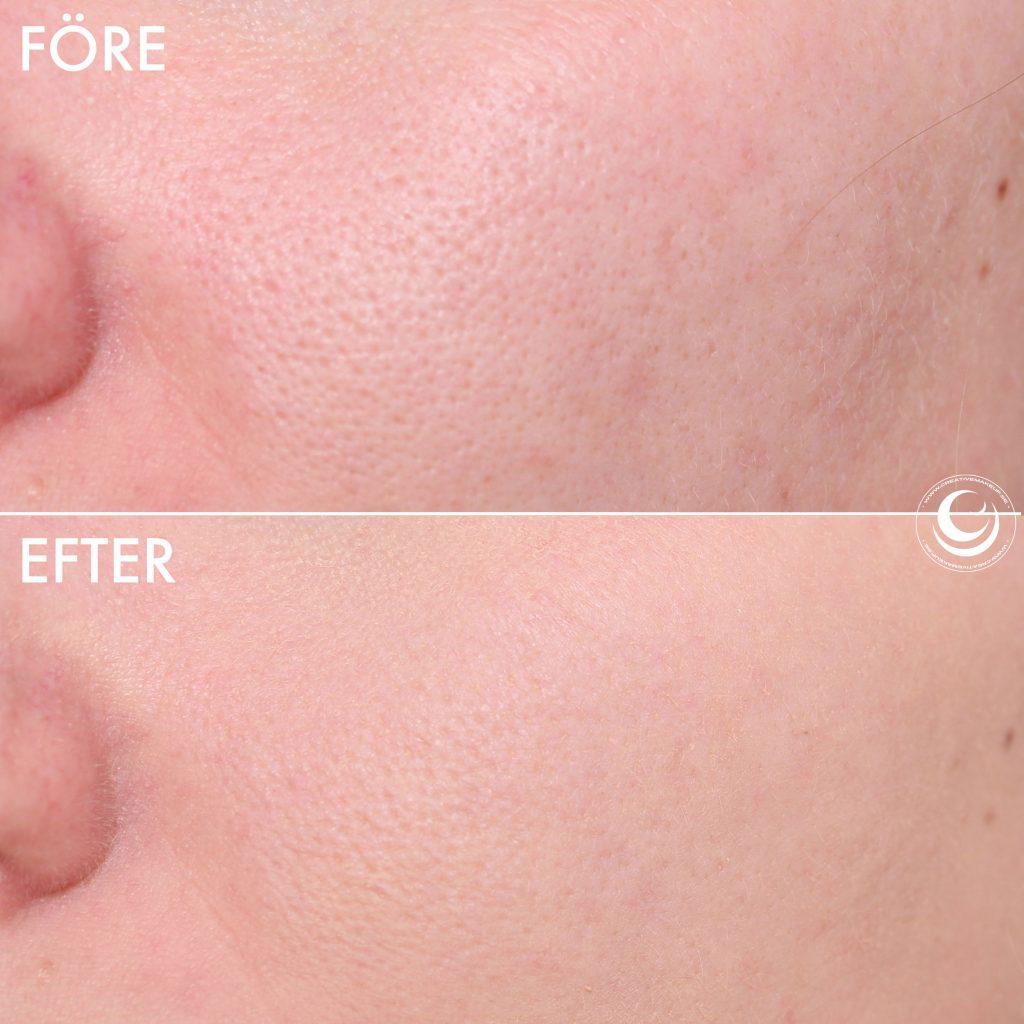 Färgad ansiktsprimer före och efter