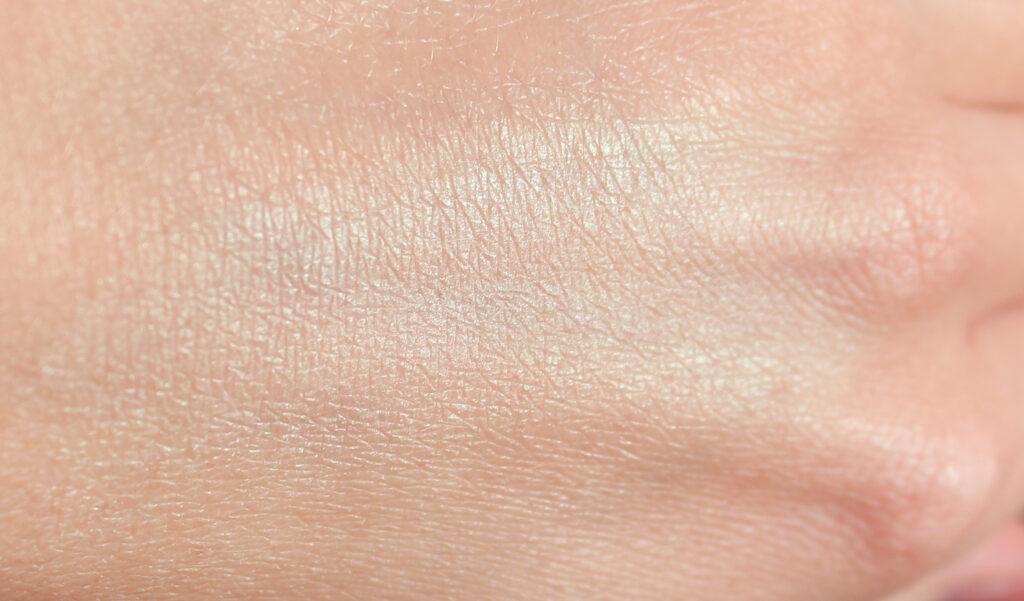 Reducir el enrojecimiento de la cara.