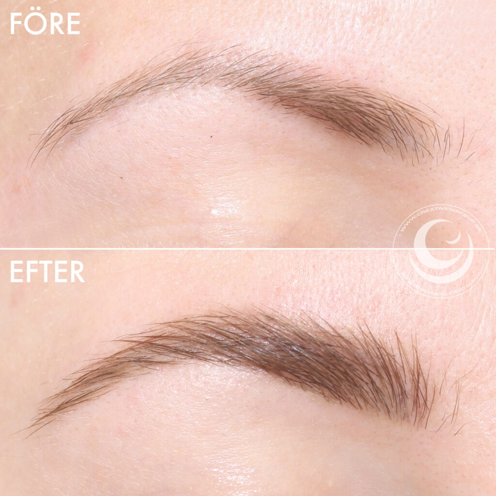 Wider eyebrows with brow lift