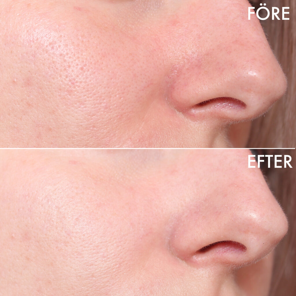 Reducir el enrojecimiento del rostro antes y después.