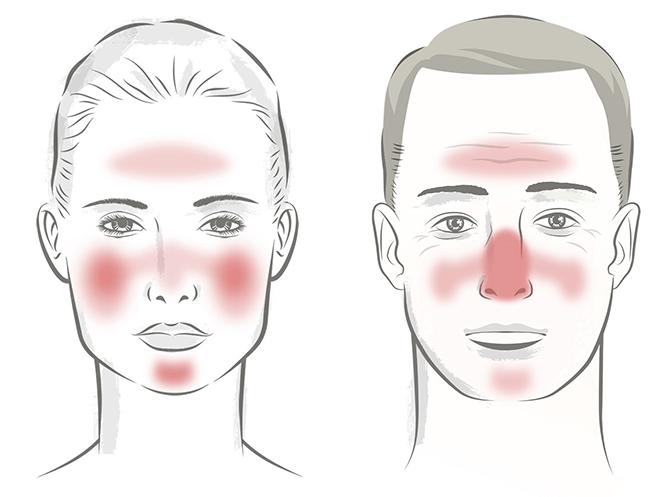 rosacea röda utslag i ansiktet behandling
