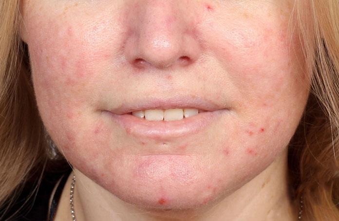 Rosacea eller röda utslag i ansiktet behandling