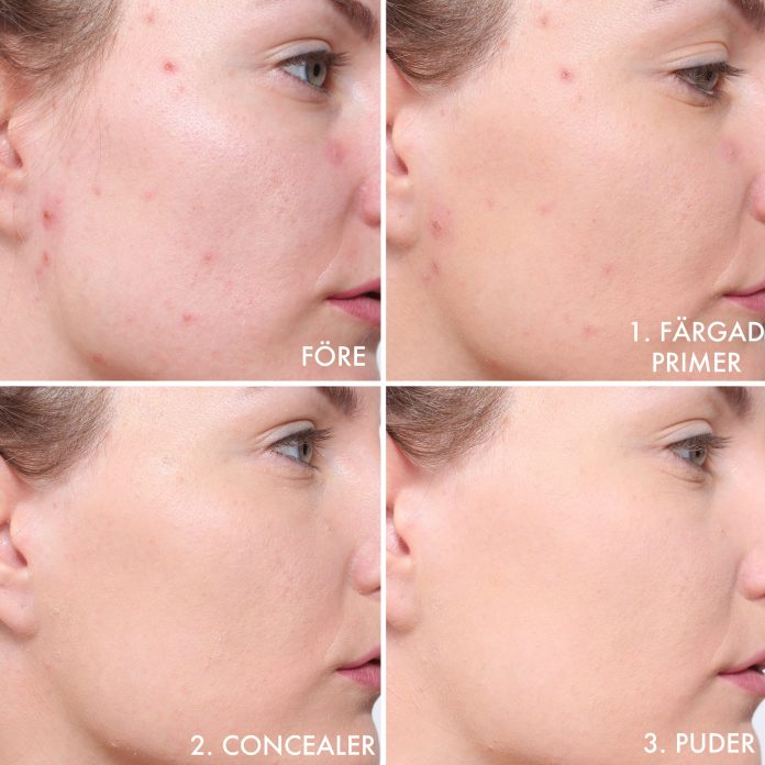 make up pimples & acne