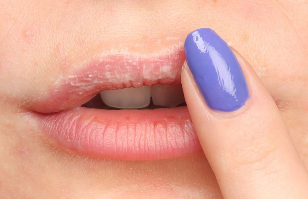 dry lips or lypsyl addiction