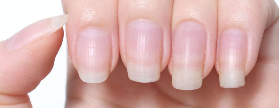 striped nails, ribbed nails, prosperous nails, nail bed