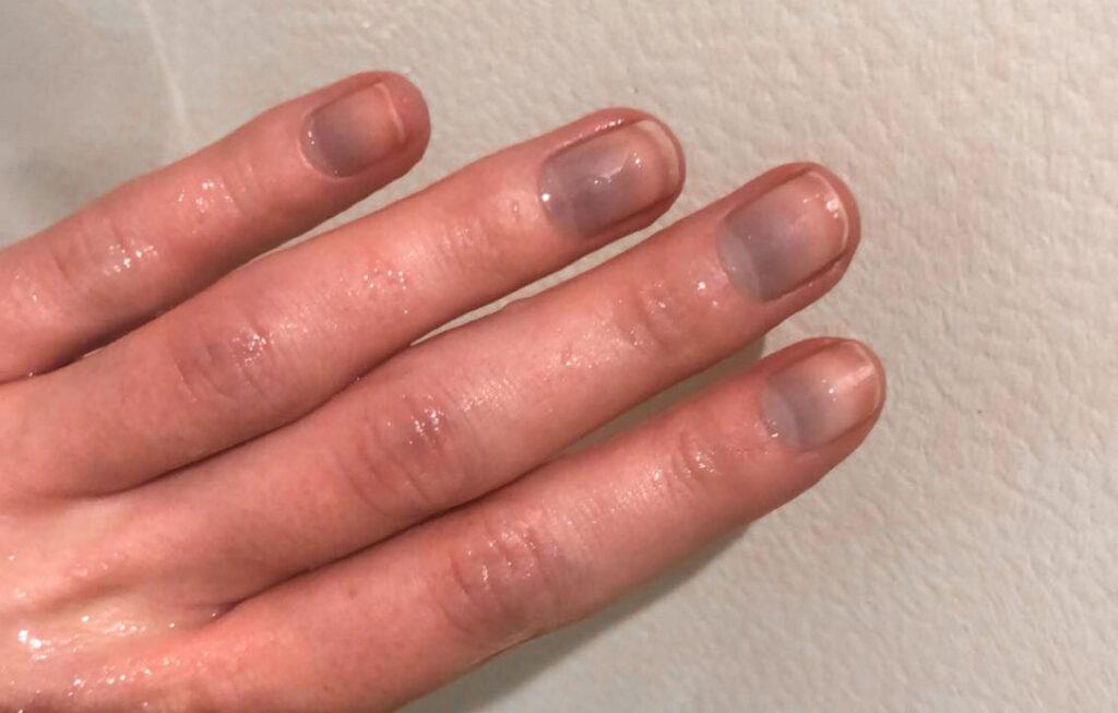 fiebre fiebre, escalofríos, dedos fríos, manos frías, pies fríos, dedos de los pies fríos, frío helado, uñas azules, manos calientes en el agua