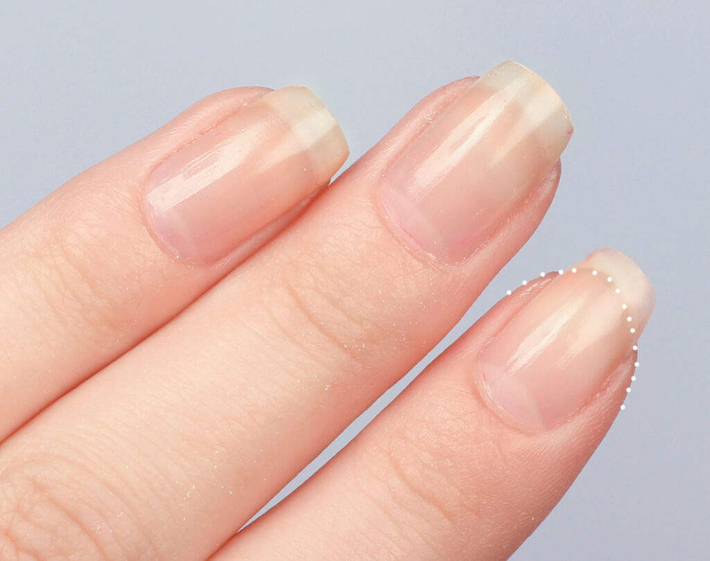 nail bed, healthy nails, healthy nails, model nails, optimal nails, perfect nails, natural nails, Ribbed nails, striped nails, fragile nails, slices, splits, strong nails, long nails, grow, faster