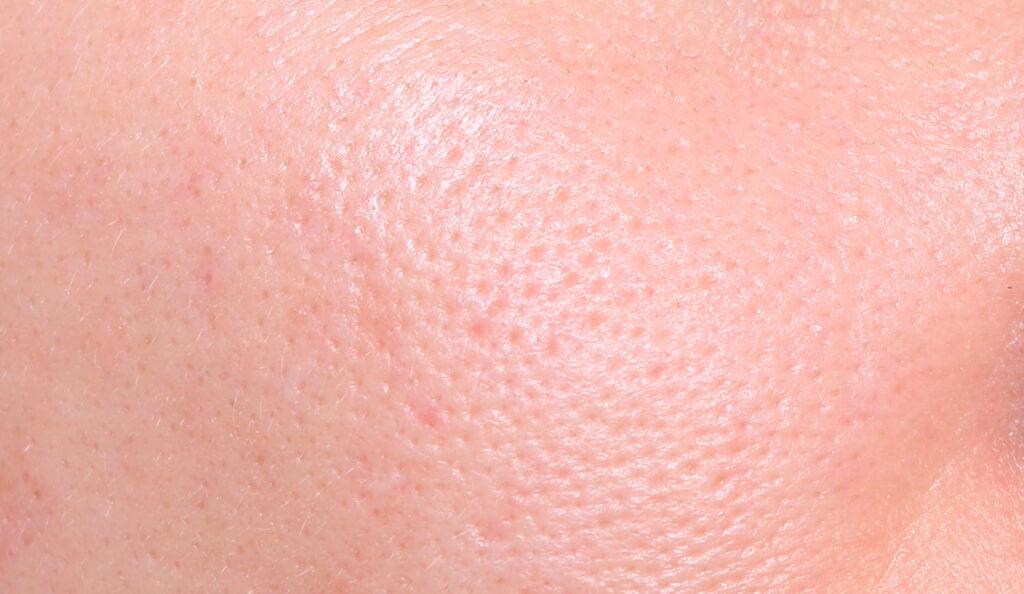 poros dilatados, poros dilatados, puntos negros, puntos negros, ¿qué son los poros? poros en la nariz, exprimiendo los puntos negros, ¿cómo deshacerse de los puntos negros? vaciado de granada, en casa, encoge los poros dilatados, poros dilatados, poros faciales, abre, poros, poros obstruidos, reduce los poros dilatados
